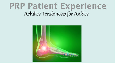 PRP Therapy Patient Experience for Achilles Tendonosis in Ankle