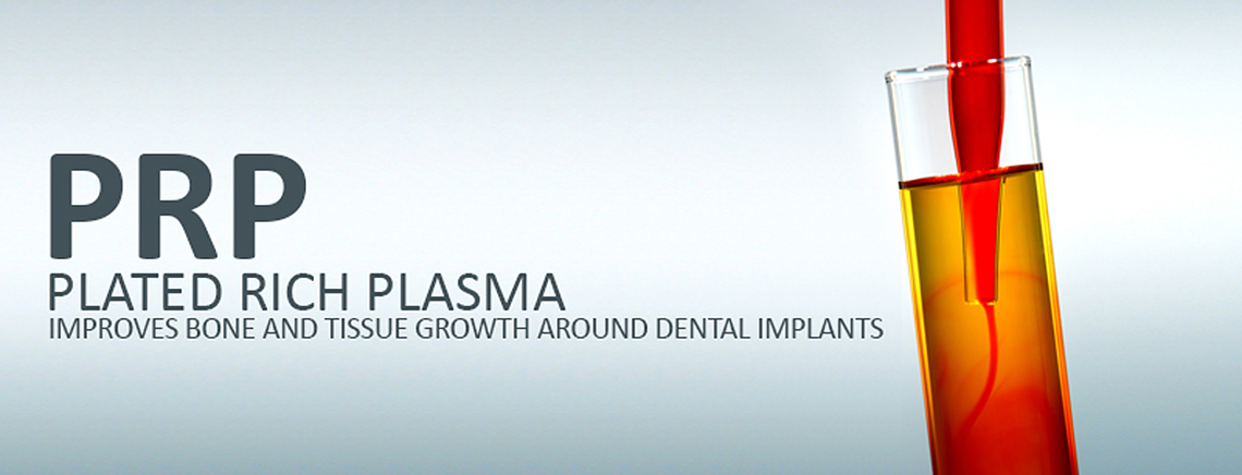 Dental Implants and PRP Treatments