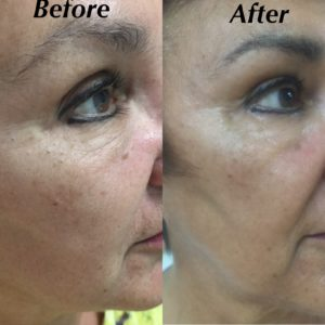 prp for skin rejuvenation micro-needling