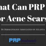 What Can PRP Do for Acne Scars-