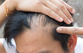 prp hair loss with nutrafol