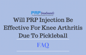 Will PRP Injection Be Effective For Knee Arthritis Due To Pickleball